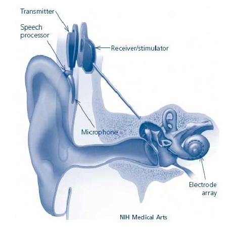 Cochlear_Implant-2